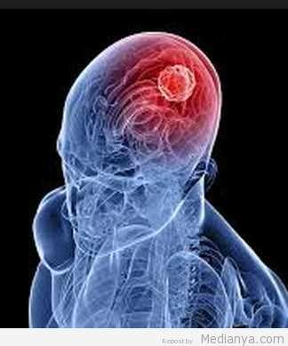 Cermati Gejala Penyakit Kanker Otak Ini